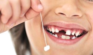 udalenie-molochnyih-zubov (1)
